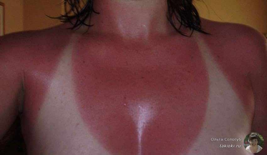 2-girl-with-horrible-sunburn